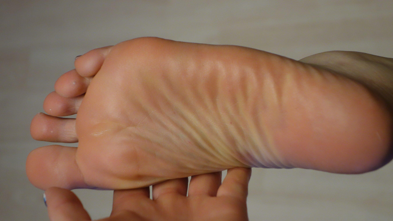 足 臭い ボトックス